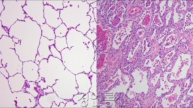 폐 현미경 사진 왼쪽 정상, 오른쪽 코로나19 환자.jpg